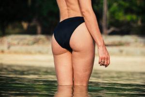 Transferring Fat to Buttocks Sarasota FL